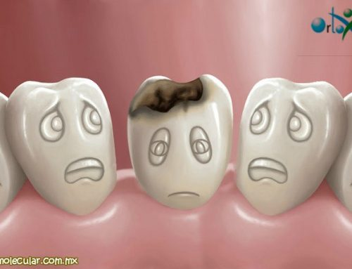 ¿Sufres de Caries dental?