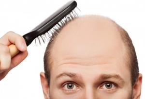 l-carnitina-efectos-secundarios-caida-del-cabello