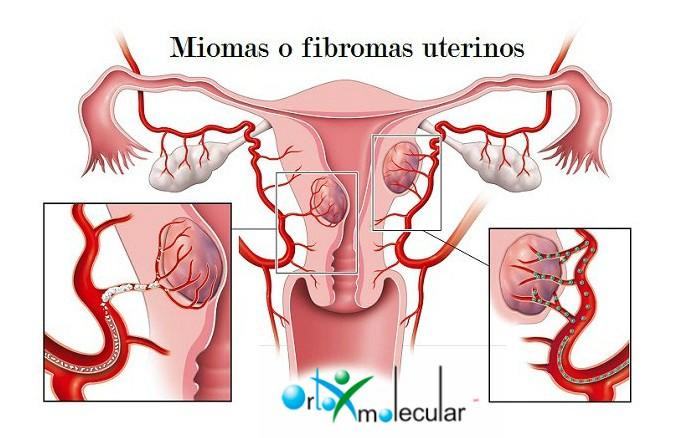 radiologia-interventistica-embolizzazione-fibroma-uterino-confronto-sferiche-e-non-sferiche1